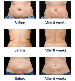 Fat Removal with Desobody